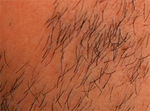 Langsam schließt sich die Bartlücke und sprießen die feinen Härchen, die mit fortschreitender Therapie immer fester und stärker werden.