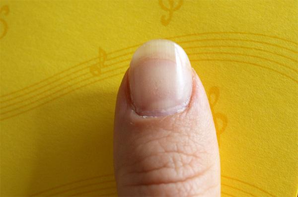 Notfalls Nagelstudio – verstärkter Daumennagel gegen Verschleiß und für knallende Bässe