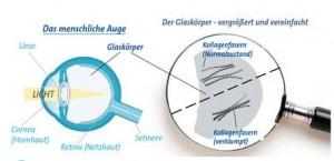 Die Trübung des Glaskörpers (Floater, Mouches Volantes, fliegende Mücken) entsteht durch Verklumpen der Kollagenfasern.